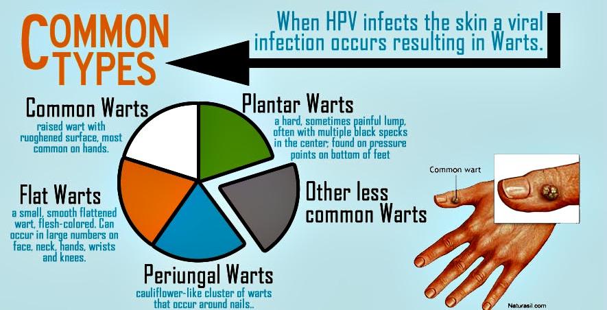 Hpv cancer strains Hpv genital warts strain Viermi psihosomatici la un copil