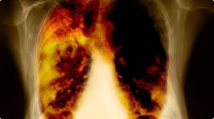 lung cancer 2