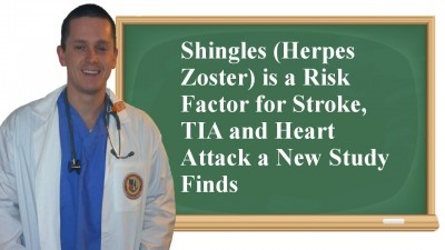 shingles and stroke