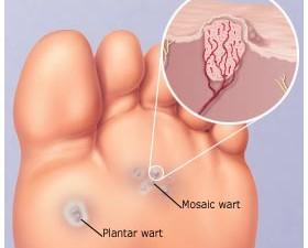 HPV Warts