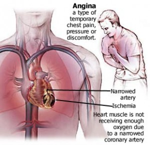 angina (1)