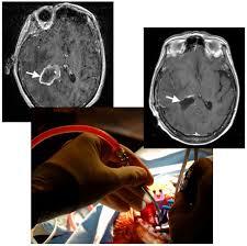 CMV - Brain Cancer