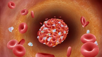 blood clots and EBV