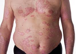 psoriasis and HPV